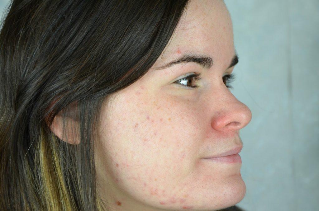 Comment vaincre l'acné ?